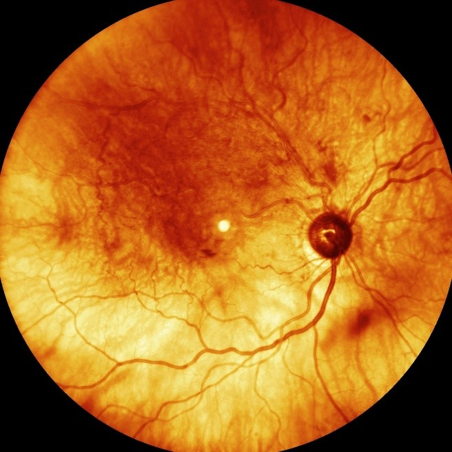 Dramatic Resolution of Recalcitrant Cystoid Macular Edema after Concurrent Intravitreal Injection of Bevacizumab and Triamcinolone